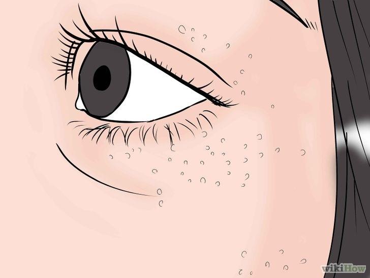 Bílé tečky okolo očí